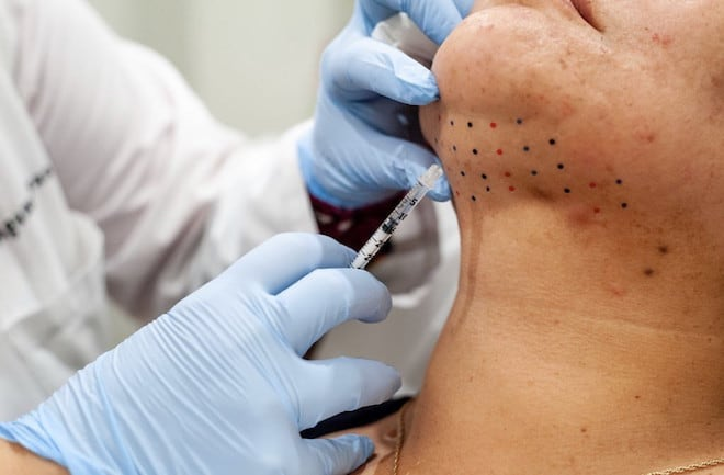 give-yourself-the-gift-of-good-skin-kybella